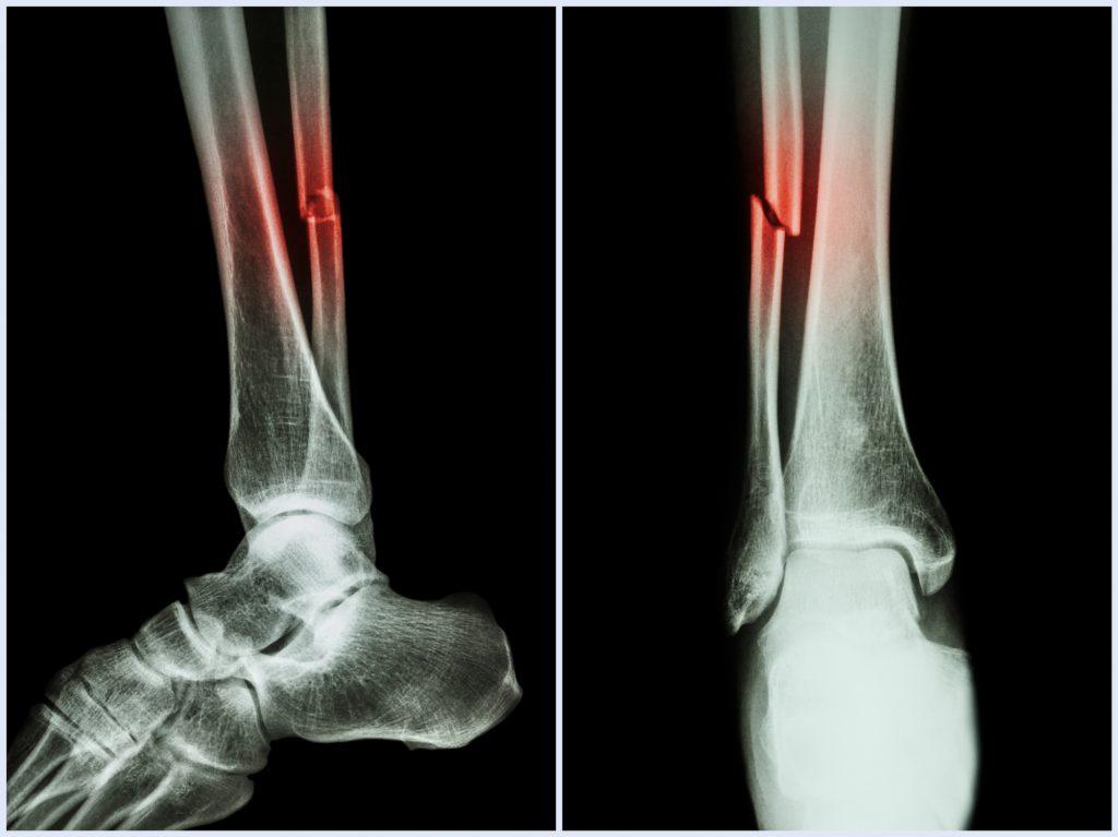 Foot Fracture Mesa AZ